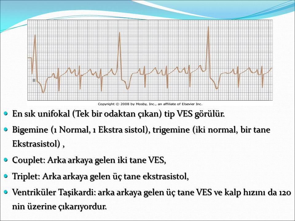 VES En sık unifokal (Tek bir odaktan çıkan) tip VES görülür. En sık unifokal (Tek bir odaktan çıkan) tip VES görülür. Bigemine (1 Normal, 1 Ekstra sis
