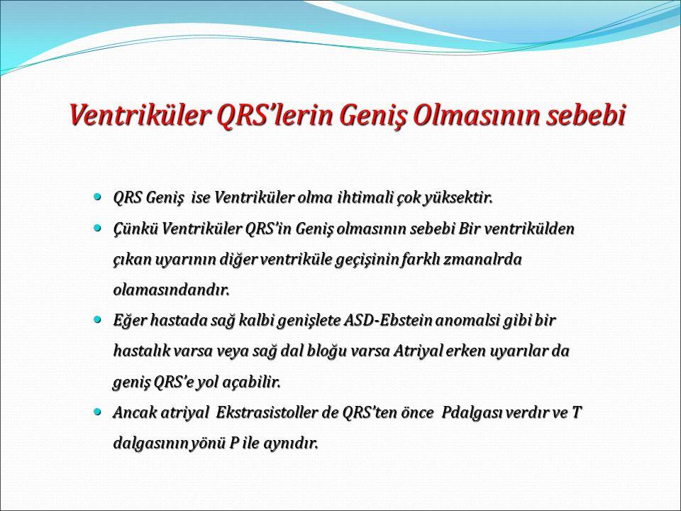 QRS Geniş ise Ventriküler olma ihtimali çok yüksektir. QRS Geniş ise Ventriküler olma ihtimali çok yüksektir. Çünkü Ventriküler QRS'in Geniş olmasının