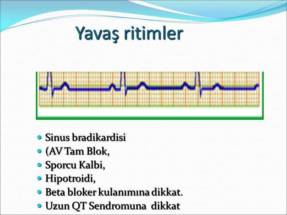 Yavaş ritimler Sinus bradikardisi Sinus bradikardisi (AV Tam Blok, (AV Tam Blok, Sporcu Kalbi, Sporcu Kalbi, Hipotroidi, Hipotroidi, Beta bloker kulan