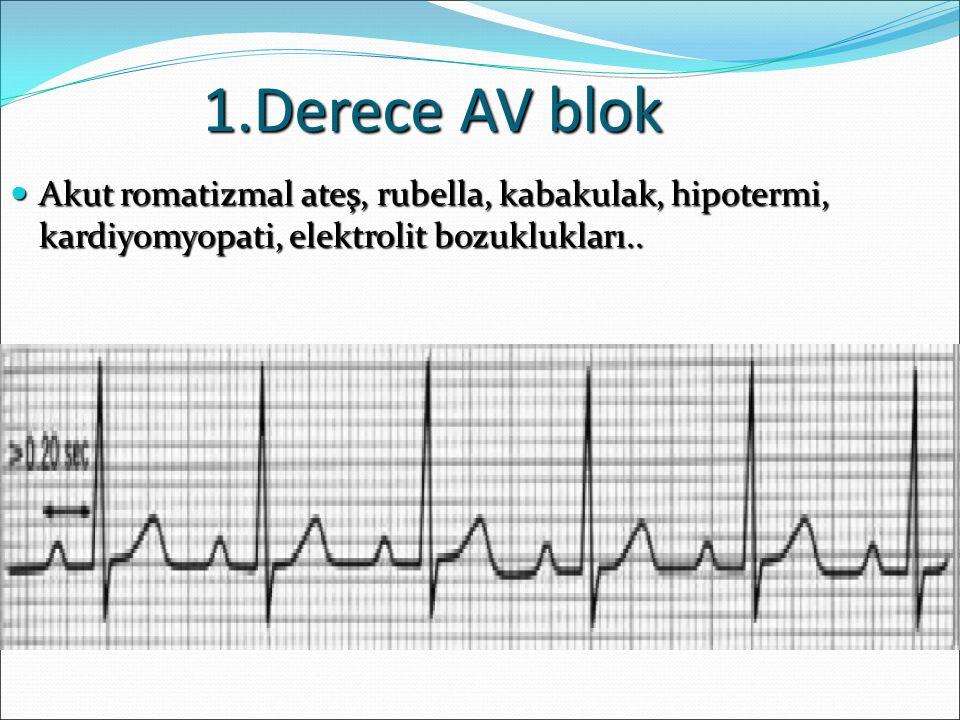 1.Derece AV blok Akut romatizmal ateş, rubella, kabakulak, hipotermi, kardiyomyopati, elektrolit bozuklukları.. Akut romatizmal ateş, rubella, kabakul