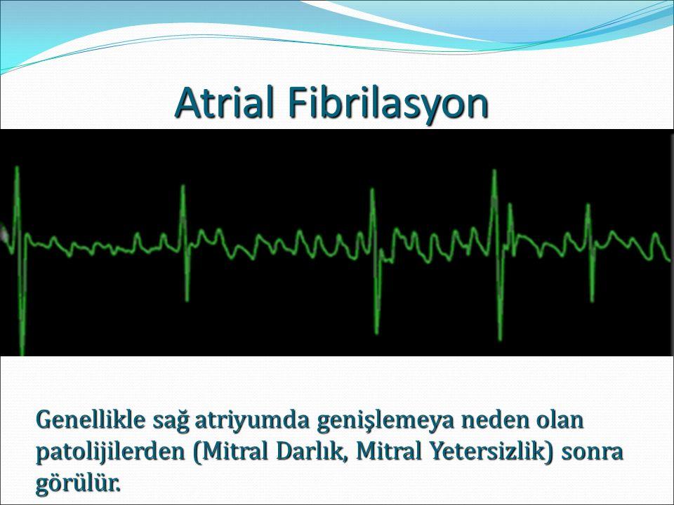 Atrial Fibrilasyon Genellikle sağ atriyumda genişlemeya neden olan patolijilerden (Mitral Darlık, Mitral Yetersizlik) sonra görülür.