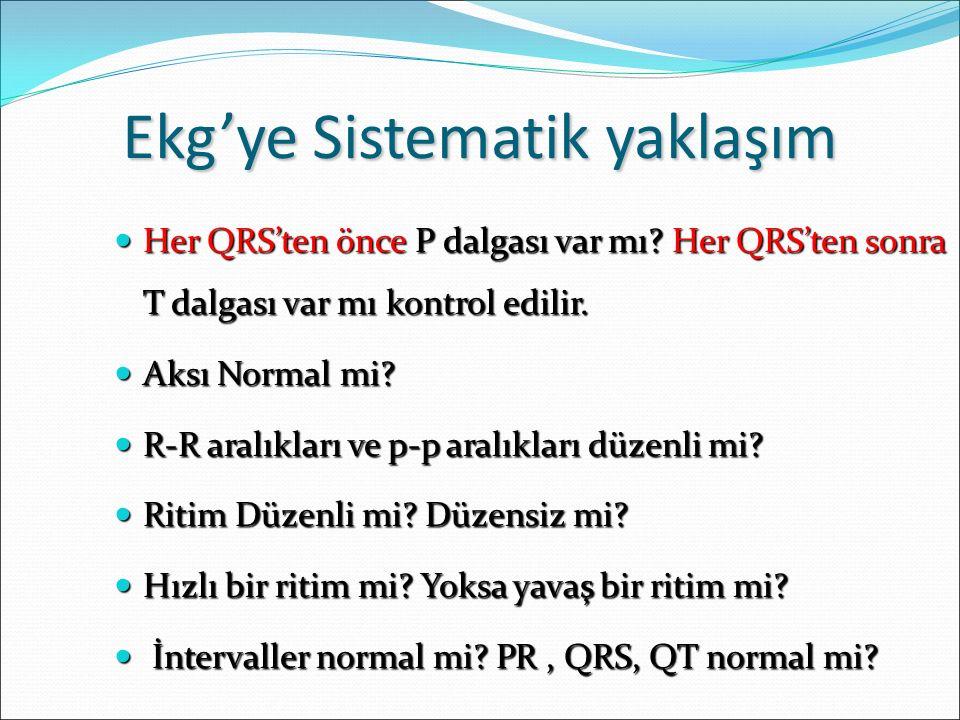 Ekg'ye Sistematik yaklaşım Her QRS'ten önce P dalgası var mı? Her QRS'ten sonra T dalgası var mı kontrol edilir. Her QRS'ten önce P dalgası var mı? He