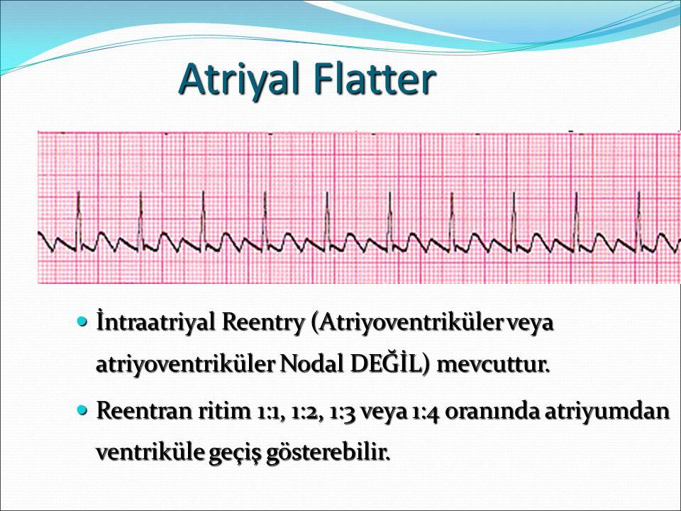 Atriyal Flatter İntraatriyal Reentry (Atriyoventriküler veya atriyoventriküler Nodal DEĞİL) mevcuttur. İntraatriyal Reentry (Atriyoventriküler veya at