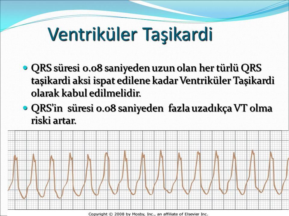 Ventriküler Taşikardi QRS süresi 0.08 saniyeden uzun olan her türlü QRS taşikardi aksi ispat edilene kadar Ventriküler Taşikardi olarak kabul edilmeli