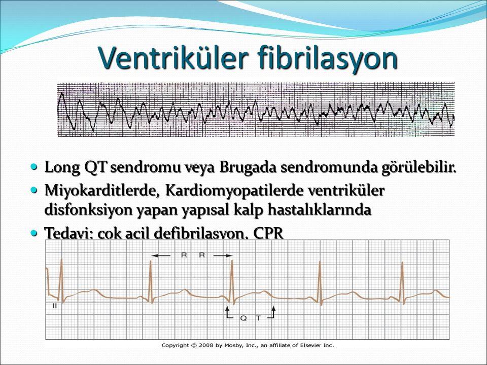 Ventriküler fibrilasyon Long QT sendromu veya Brugada sendromunda görülebilir. Long QT sendromu veya Brugada sendromunda görülebilir. Miyokarditlerde,