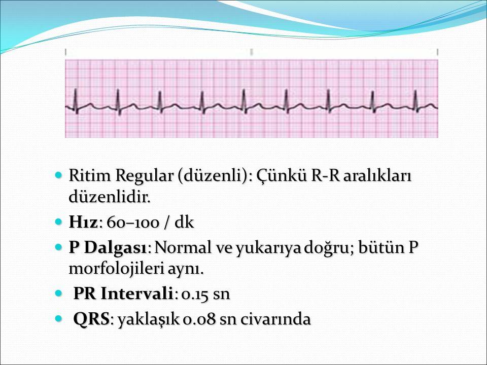 Ritim Regular (düzenli): Çünkü R-R aralıkları düzenlidir. Ritim Regular (düzenli): Çünkü R-R aralıkları düzenlidir. Hız: 60–100 / dk Hız: 60–100 / dk
