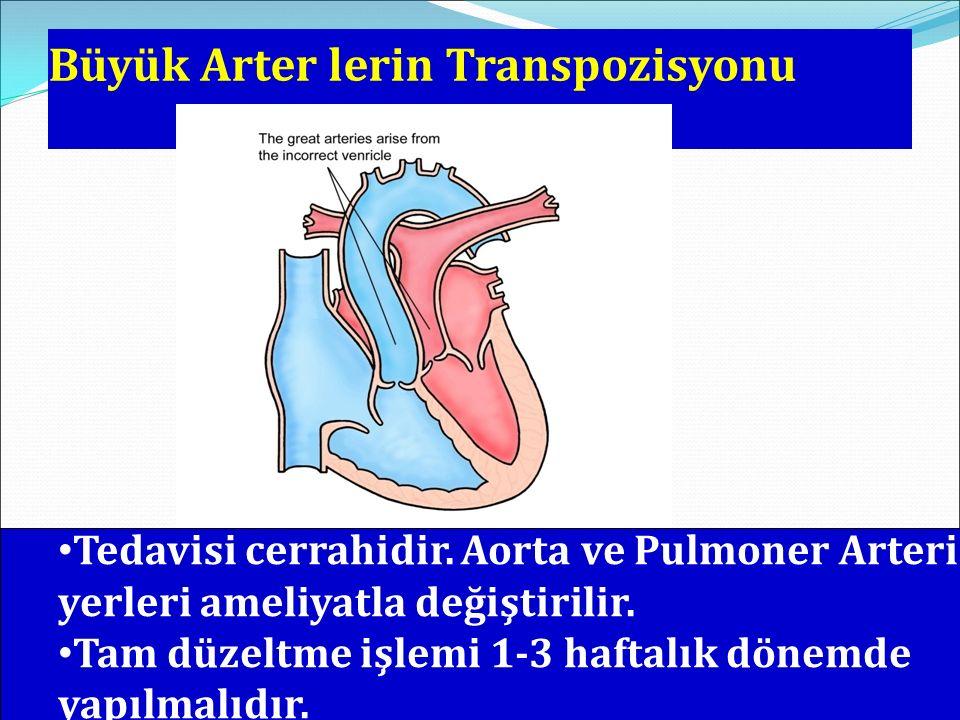 Büyük Arter lerin Transpozisyonu Tedavisi cerrahidir. Aorta ve Pulmoner Arterin yerleri ameliyatla değiştirilir. Tam düzeltme işlemi 1-3 haftalık döne