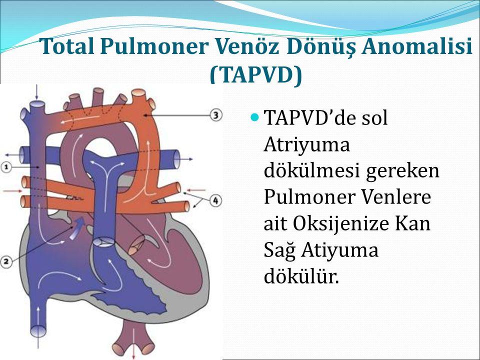 Total Pulmoner Venöz Dönüş Anomalisi (TAPVD) TAPVD'de sol Atriyuma dökülmesi gereken Pulmoner Venlere ait Oksijenize Kan Sağ Atiyuma dökülür.