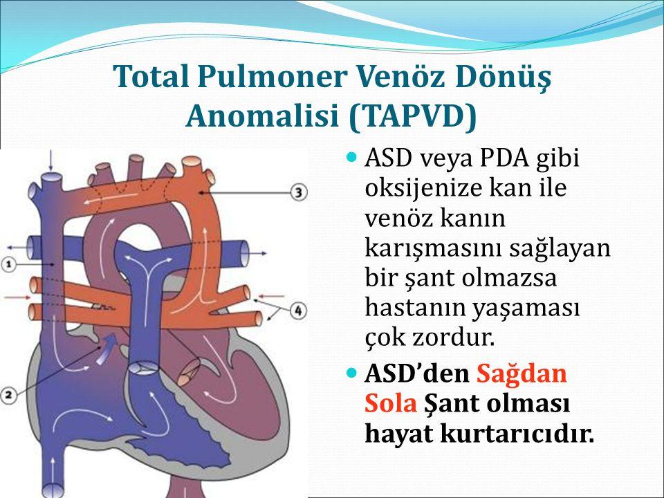 Total Pulmoner Venöz Dönüş Anomalisi (TAPVD) ASD veya PDA gibi oksijenize kan ile venöz kanın karışmasını sağlayan bir şant olmazsa hastanın yaşaması