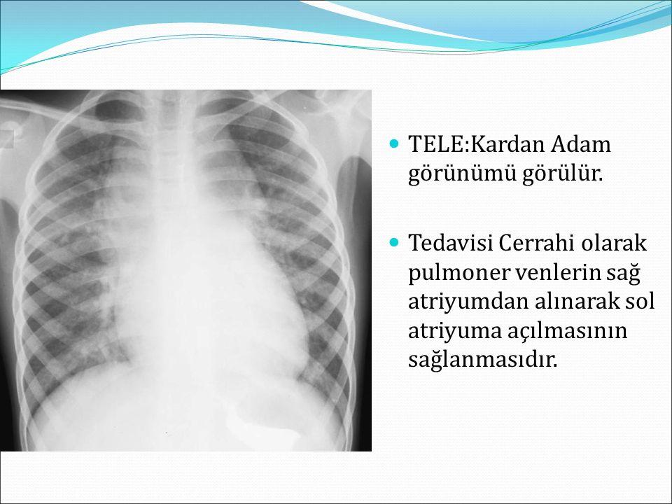 TELE:Kardan Adam görünümü görülür. Tedavisi Cerrahi olarak pulmoner venlerin sağ atriyumdan alınarak sol atriyuma açılmasının sağlanmasıdır.