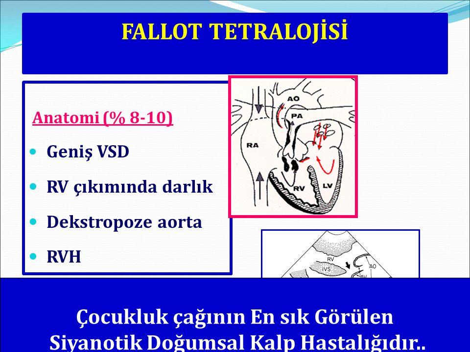 FALLOT TETRALOJİSİ Anatomi (% 8-10) Geniş VSD RV çıkımında darlık Dekstropoze aorta RVH Çocukluk çağının En sık Görülen Siyanotik Doğumsal Kalp Hastal