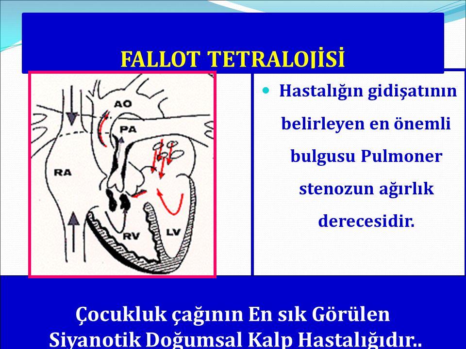 FALLOT TETRALOJİSİ Hastalığın gidişatının belirleyen en önemli bulgusu Pulmoner stenozun ağırlık derecesidir. Çocukluk çağının En sık Görülen Siyanoti