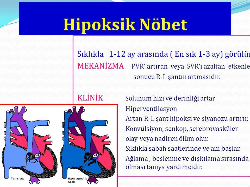 Hipoksik Nöbet Sıklıkla 1-12 ay arasında ( En sık 1-3 ay) görülür. MEKANİZMA PVR' artıran veya SVR'ı azaltan etkenler sonucu R-L şantın artmasıdır. KL