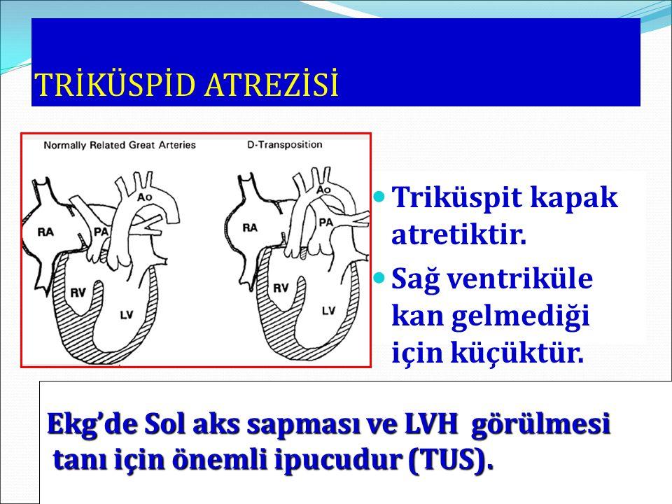 TRİKÜSPİD ATREZİSİ Triküspit kapak atretiktir. Sağ ventriküle kan gelmediği için küçüktür. Ekg'de Sol aks sapması ve LVH görülmesi tanı için önemli ip
