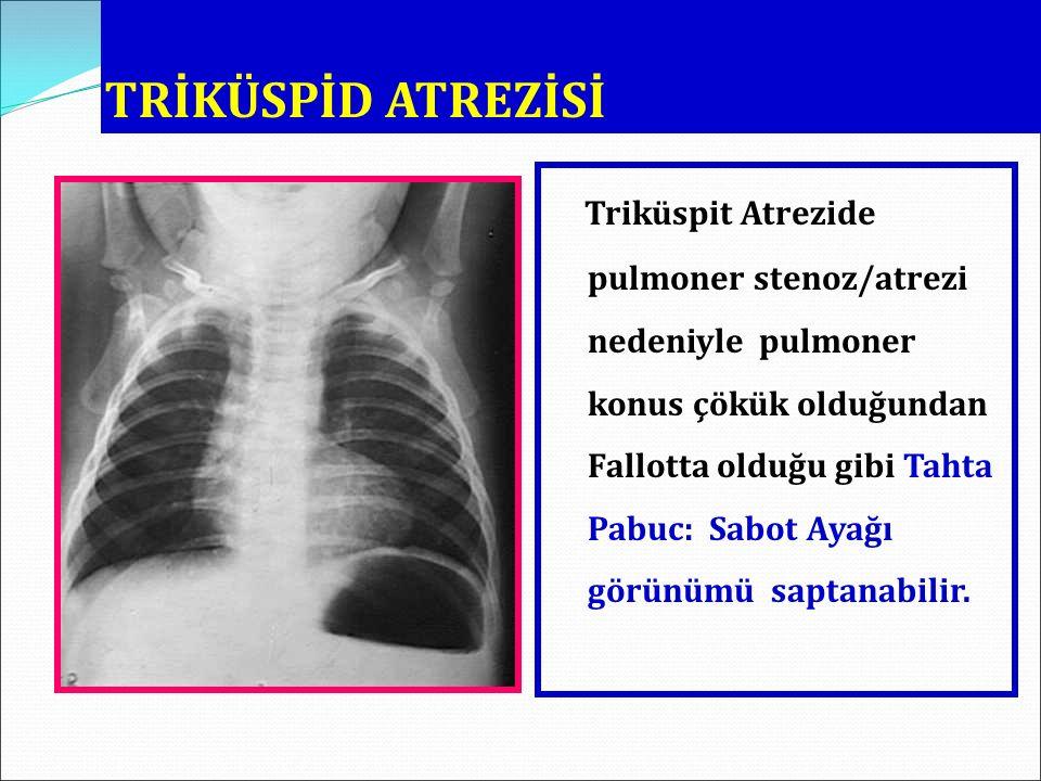 TRİKÜSPİD ATREZİSİ Triküspit Atrezide pulmoner stenoz/atrezi nedeniyle pulmoner konus çökük olduğundan Fallotta olduğu gibi Tahta Pabuc: Sabot Ayağı g
