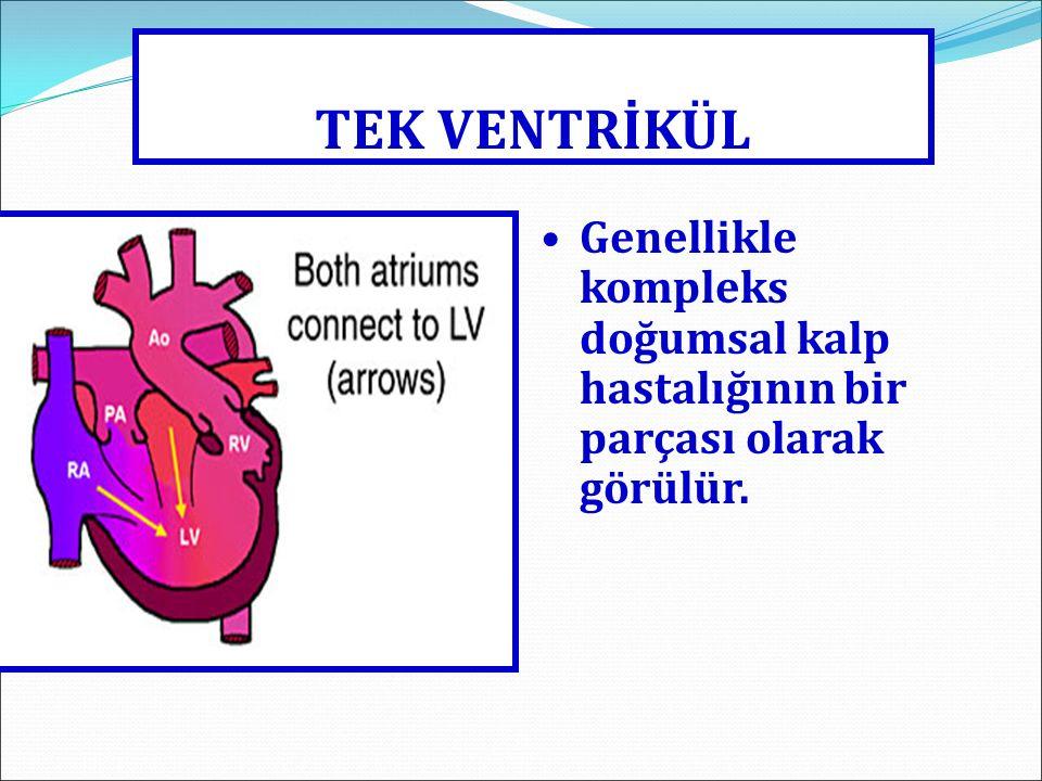 TEK VENTRİKÜL Genellikle kompleks doğumsal kalp hastalığının bir parçası olarak görülür.