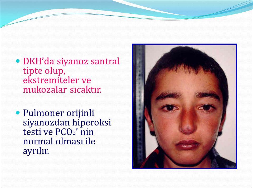 Fetal Ekokardiyografi Önceki Doğumda DKH, Anne-Babada DKH, Annede Diabet, Kollajen doku hast.