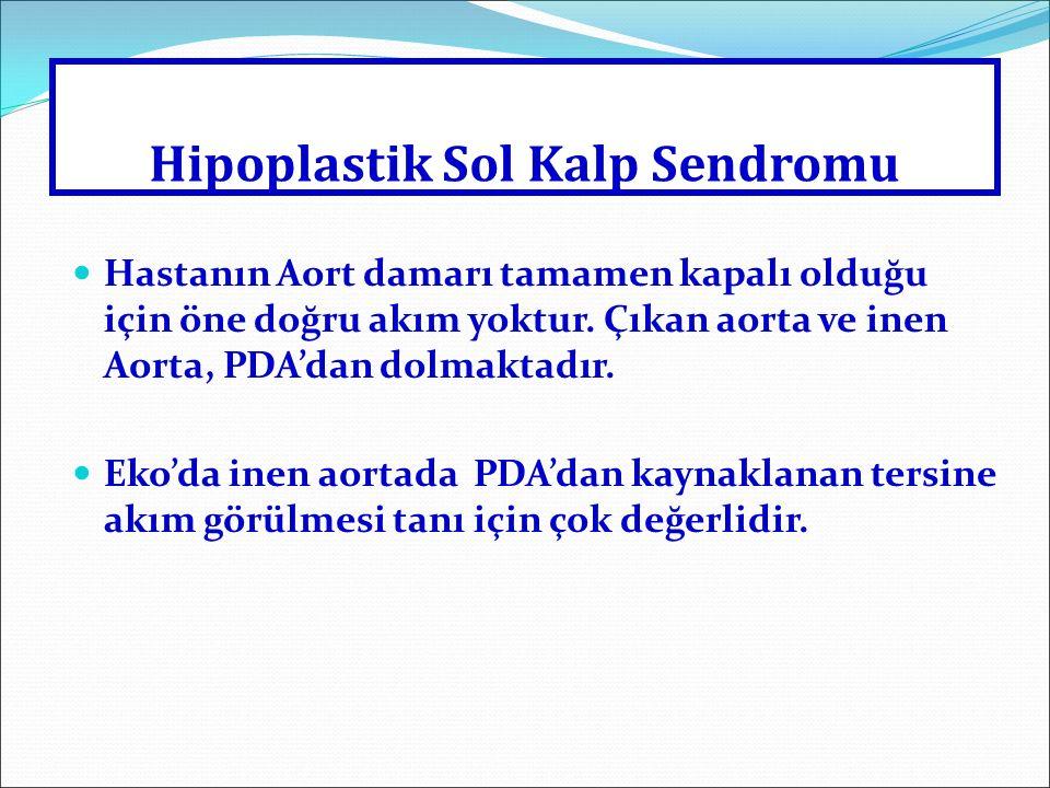 Hipoplastik Sol Kalp Sendromu Hipoplazik sol kalp Hastanın Aort damarı tamamen kapalı olduğu için öne doğru akım yoktur. Çıkan aorta ve inen Aorta, PD
