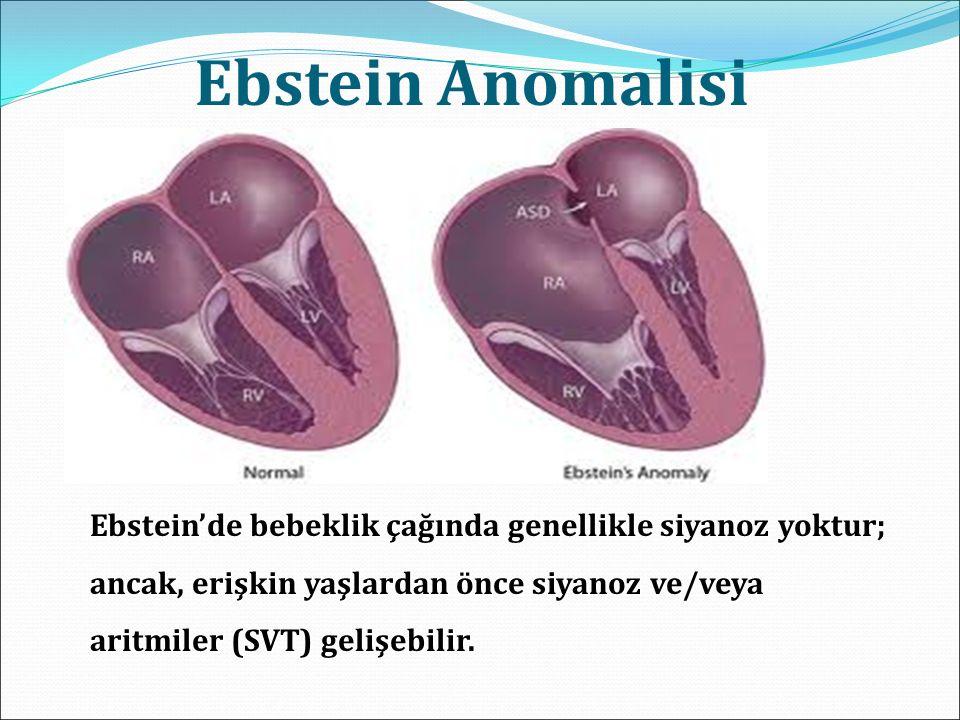 Ebstein Anomalisi Ebstein'de bebeklik çağında genellikle siyanoz yoktur; ancak, erişkin yaşlardan önce siyanoz ve/veya aritmiler (SVT) gelişebilir.