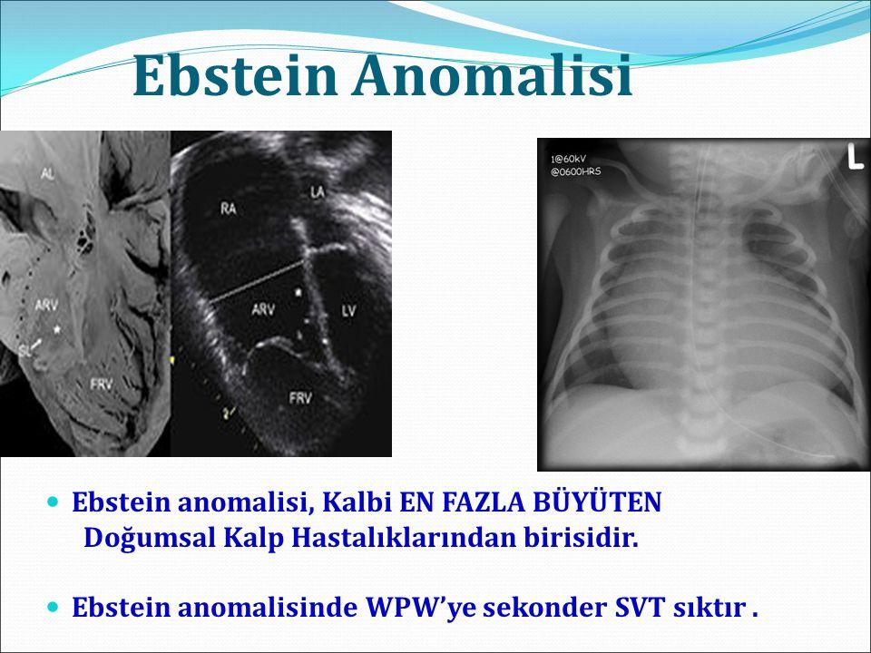 Ebstein Anomalisi Ebstein anomalisi, Kalbi EN FAZLA BÜYÜTEN Doğumsal Kalp Hastalıklarından birisidir. Ebstein anomalisinde WPW'ye sekonder SVT sıktır.