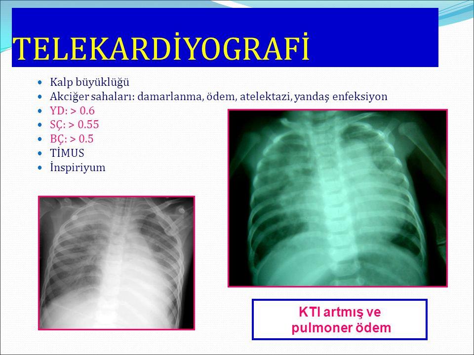 TELEKARDİYOGRAFİ Kalp büyüklüğü Akciğer sahaları: damarlanma, ödem, atelektazi, yandaş enfeksiyon YD: > 0.6 SÇ: > 0.55 BÇ: > 0.5 TİMUS İnspiriyum KTI