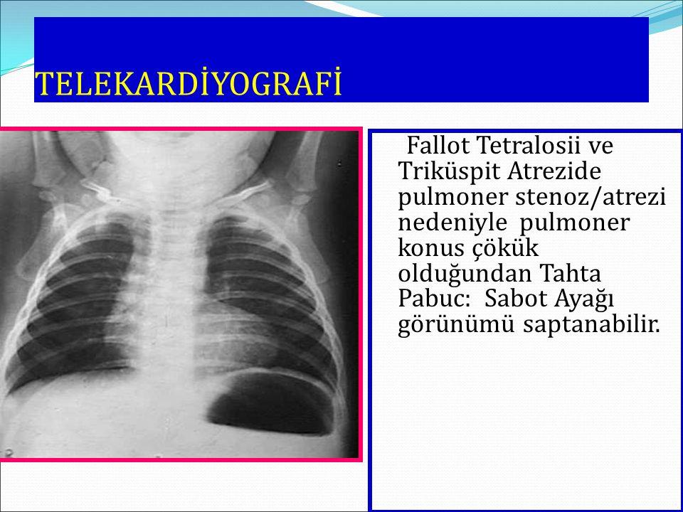 TELEKARDİYOGRAFİ Fallot Tetralosii ve Triküspit Atrezide pulmoner stenoz/atrezi nedeniyle pulmoner konus çökük olduğundan Tahta Pabuc: Sabot Ayağı gör