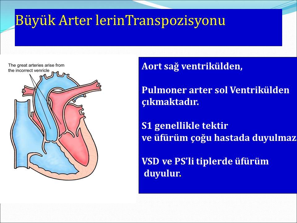 Büyük Arter lerinTranspozisyonu Aort sağ ventrikülden, Pulmoner arter sol Ventrikülden çıkmaktadır. S1 genellikle tektir ve üfürüm çoğu hastada duyulm