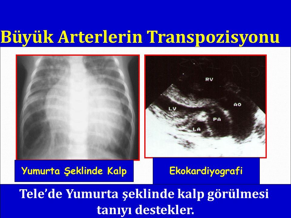 TELEKARDİYOGRAFİ Kalp büyüklüğü Akciğer sahaları: damarlanma, ödem, atelektazi, yandaş enfeksiyon YD: > 0.6 SÇ: > 0.55 BÇ: > 0.5 TİMUS İnspiriyum KTI artmış ve pulmoner ödem