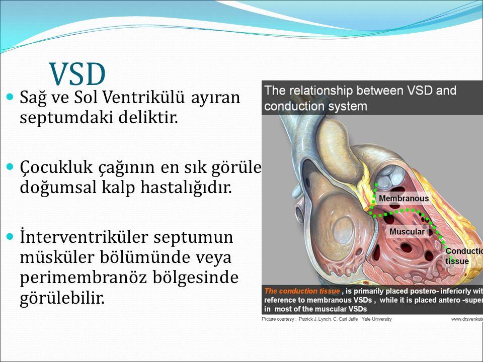 VSD Sağ ve Sol Ventrikülü ayıran septumdaki deliktir. Çocukluk çağının en sık görülen doğumsal kalp hastalığıdır. İnterventriküler septumun müsküler b