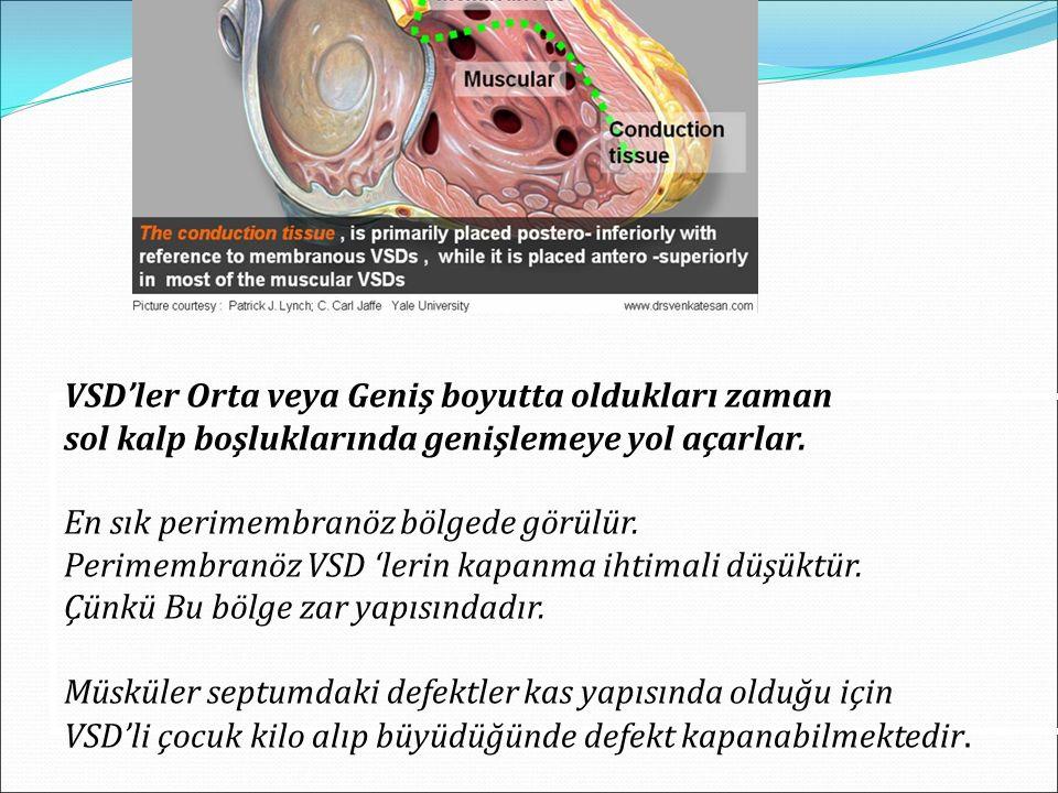 VSD'ler Orta veya Geniş boyutta oldukları zaman sol kalp boşluklarında genişlemeye yol açarlar. En sık perimembranöz bölgede görülür. Perimembranöz VS