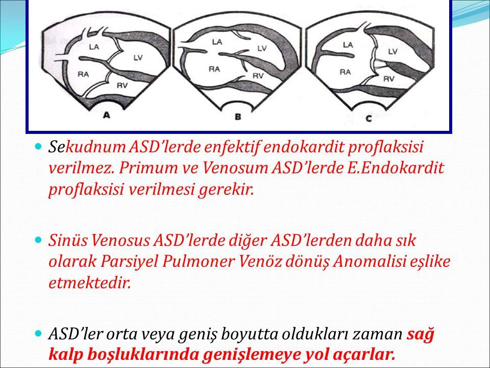 Sekudnum ASD'lerde enfektif endokardit proflaksisi verilmez.