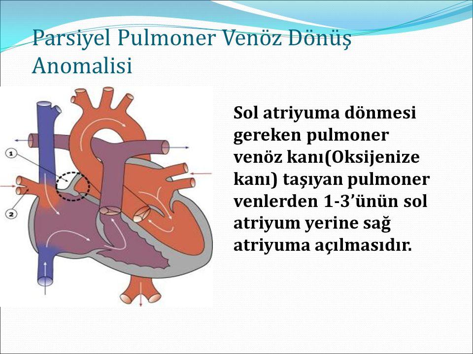 Parsiyel Pulmoner Venöz Dönüş Anomalisi Sol atriyuma dönmesi gereken pulmoner venöz kanı(Oksijenize kanı) taşıyan pulmoner venlerden 1-3'ünün sol atriyum yerine sağ atriyuma açılmasıdır.