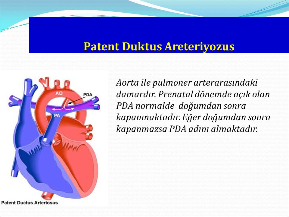 Patent Duktus Areteriyozus Aorta ile pulmoner arterarasındaki damardır. Prenatal dönemde açık olan PDA normalde doğumdan sonra kapanmaktadır. Eğer doğ