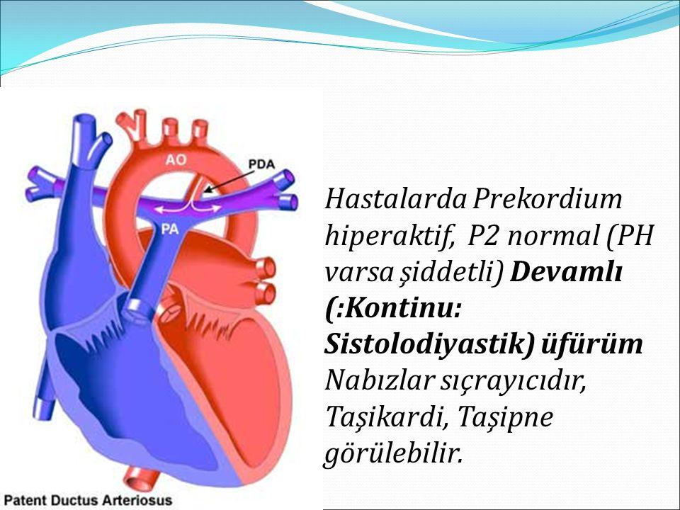 Hastalarda Prekordium hiperaktif, P2 normal (PH varsa şiddetli) Devamlı (:Kontinu: Sistolodiyastik) üfürüm Nabızlar sıçrayıcıdır, Taşikardi, Taşipne g