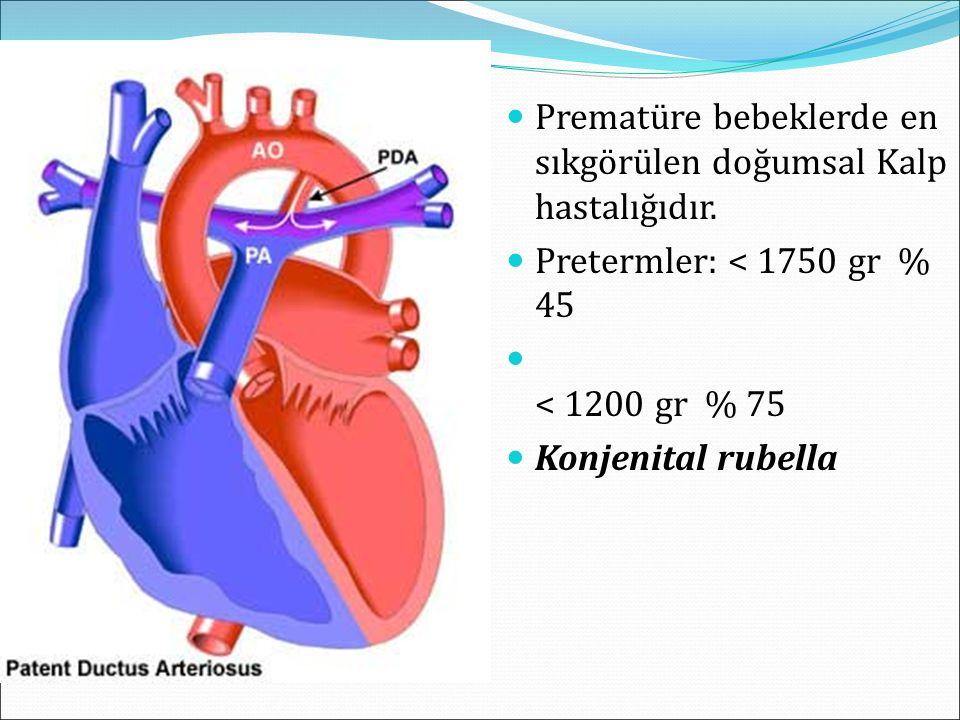 Prematüre bebeklerde en sıkgörülen doğumsal Kalp hastalığıdır. Pretermler: < 1750 gr % 45 < 1200 gr % 75 Konjenital rubella