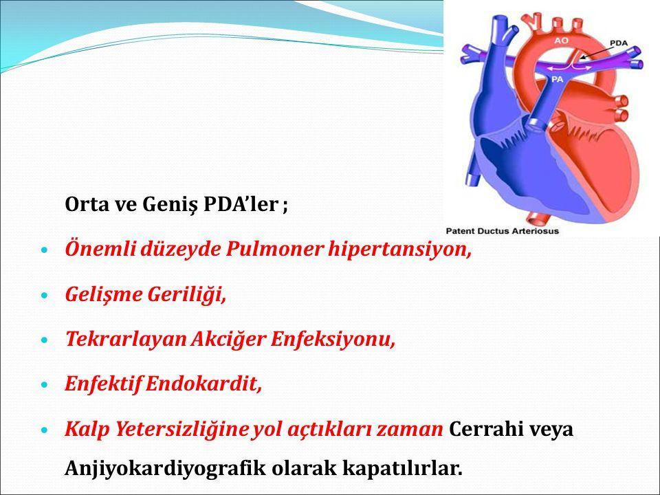 Orta ve Geniş PDA'ler ; Önemli düzeyde Pulmoner hipertansiyon, Gelişme Geriliği, Tekrarlayan Akciğer Enfeksiyonu, Enfektif Endokardit, Kalp Yetersizliğine yol açtıkları zaman Cerrahi veya Anjiyokardiyografik olarak kapatılırlar.