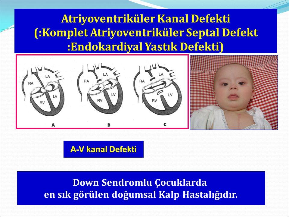 Atriyoventriküler Kanal Defekti (:Komplet Atriyoventriküler Septal Defekt :Endokardiyal Yastık Defekti) A-V kanal Defekti Down Sendromlu Çocuklarda en sık görülen doğumsal Kalp Hastalığıdır.