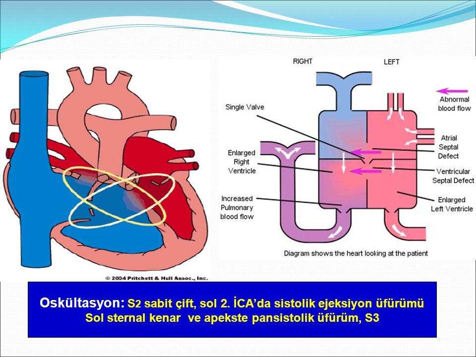 Oskültasyon: S 2 sabit çift, sol 2. İCA'da sistolik ejeksiyon üfürümü Sol sternal kenar ve apekste pansistolik üfürüm, S3