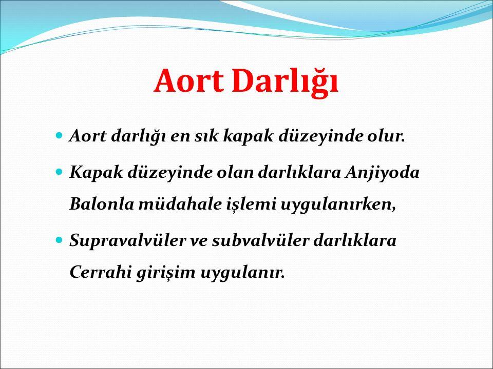 Aort Darlığı Aort darlığı en sık kapak düzeyinde olur. Kapak düzeyinde olan darlıklara Anjiyoda Balonla müdahale işlemi uygulanırken, Supravalvüler ve