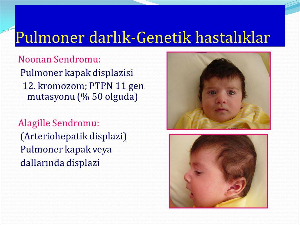 Pulmoner darlık-Genetik hastalıklar Noonan Sendromu: Pulmoner kapak displazisi 12.