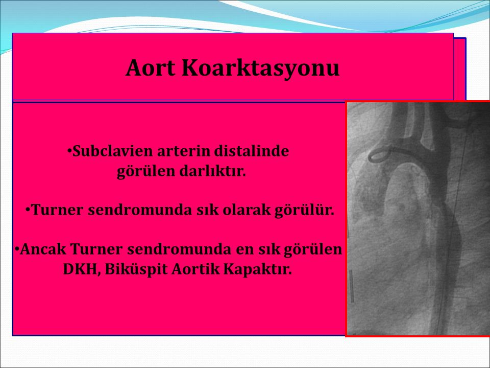 Doğuştan Darlıklı Kalp Hastalıkları Subclavien arterin distalinde görülen darlıktır. Turner sendromunda sık olarak görülür. Ancak Turner sendromunda e