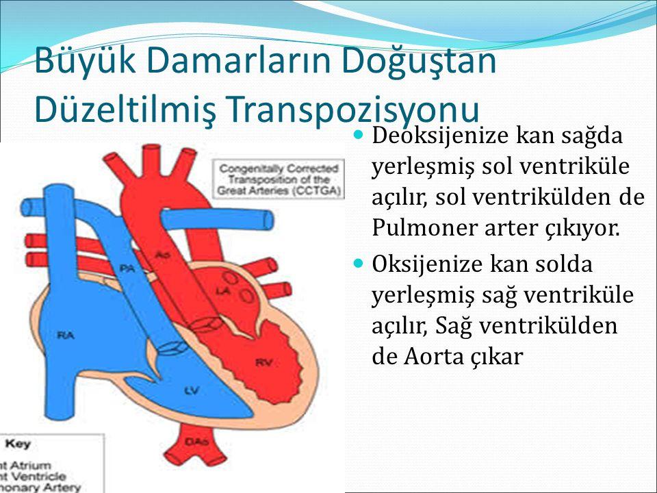 Büyük Damarların Doğuştan Düzeltilmiş Transpozisyonu Deoksijenize kan sağda yerleşmiş sol ventriküle açılır, sol ventrikülden de Pulmoner arter çıkıyor.