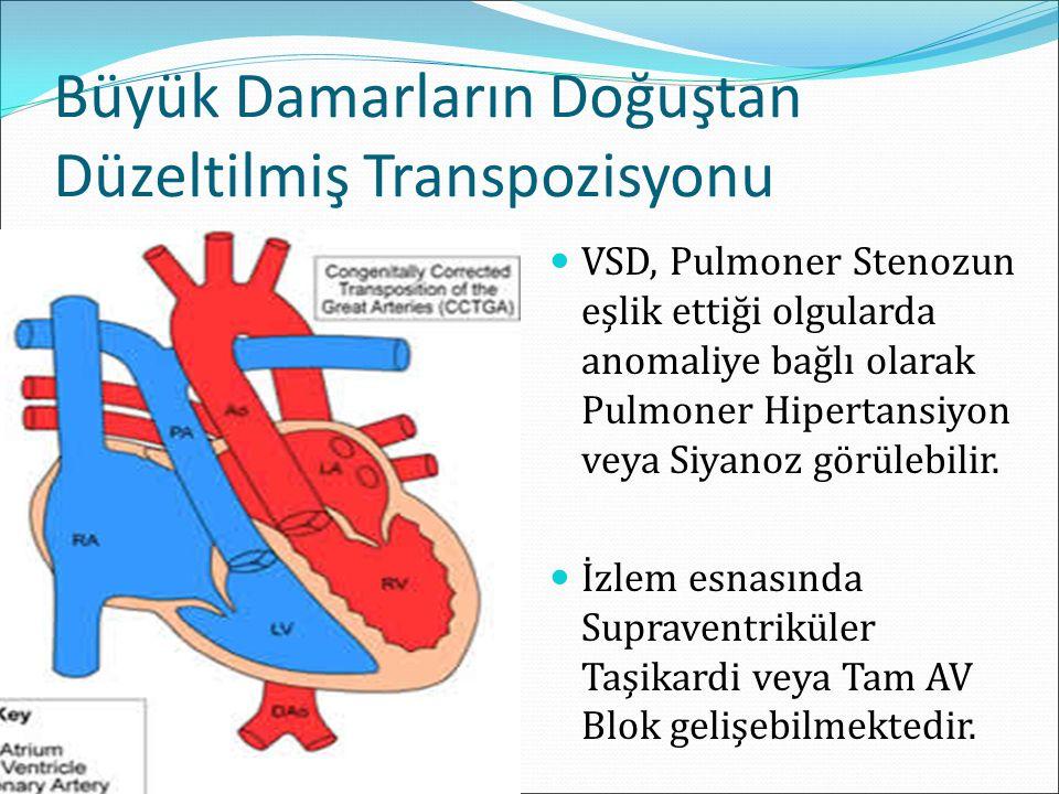 Büyük Damarların Doğuştan Düzeltilmiş Transpozisyonu VSD, Pulmoner Stenozun eşlik ettiği olgularda anomaliye bağlı olarak Pulmoner Hipertansiyon veya Siyanoz görülebilir.