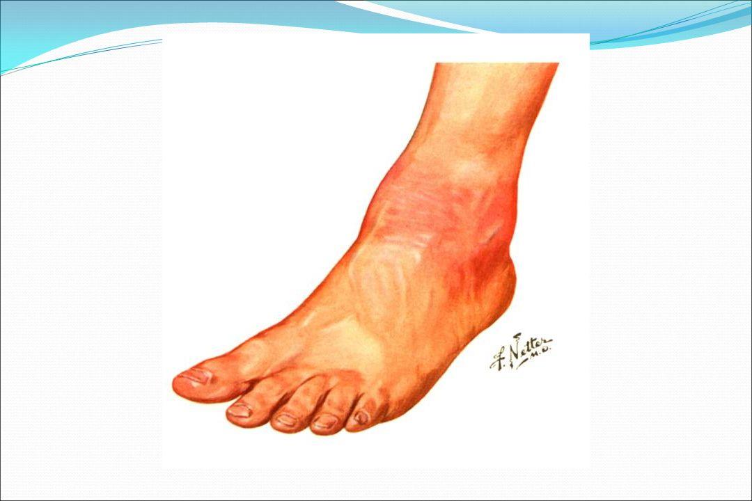 ARTRİT Büyük eklemler tutulur Diz, dirsek, ayak ve el bilekleri Ağrı, şişlik, kızarıklık, sıcaklık Asimetrik, Gezici poliartrit Salisilatlara çabuk yanıt Sekel bırakmaz Tedavisiz de iyileşir.
