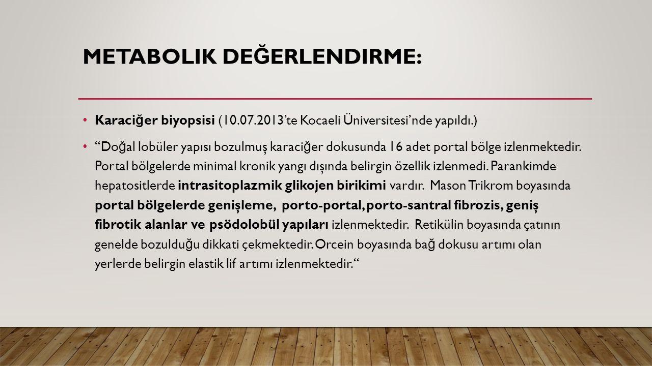 """METABOLIK DE Ğ ERLENDIRME: Karaci ğ er biyopsisi (10.07.2013'te Kocaeli Üniversitesi'nde yapıldı.) """"Do ğ al lobüler yapısı bozulmuş karaci ğ er dokusu"""