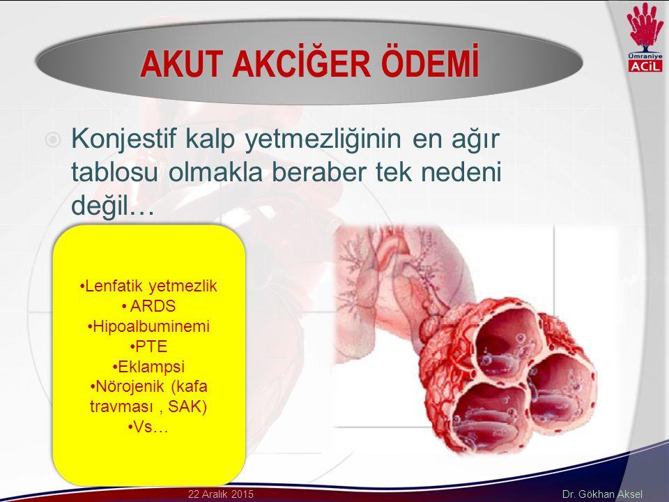 Dr. Gökhan Aksel22 Aralık 2015  Konjestif kalp yetmezliğinin en ağır tablosu olmakla beraber tek nedeni değil… Lenfatik yetmezlik ARDS Hipoalbuminemi