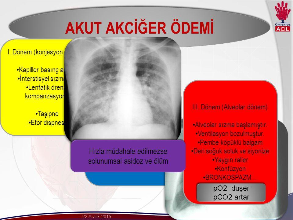 Dr. Gökhan Aksel22 Aralık 2015 AKUT AKCİĞER ÖDEMİ I.