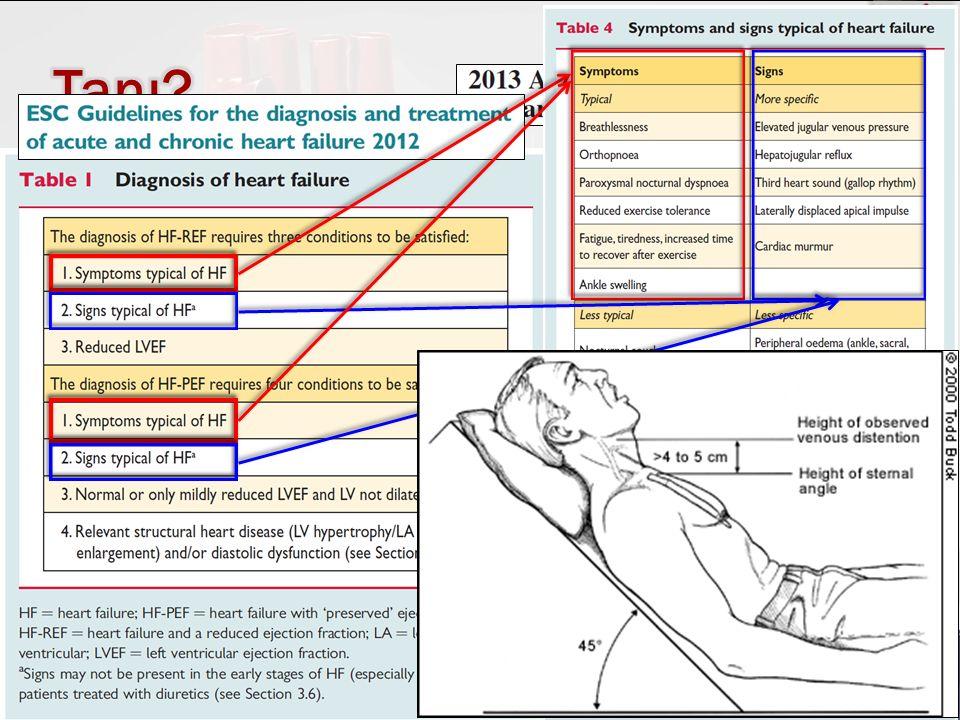 Dr. Gökhan Aksel22 Aralık 2015  Öykü, Fizik muayene  Volüm durumu, kilo ölçümü  Periferal ödem.