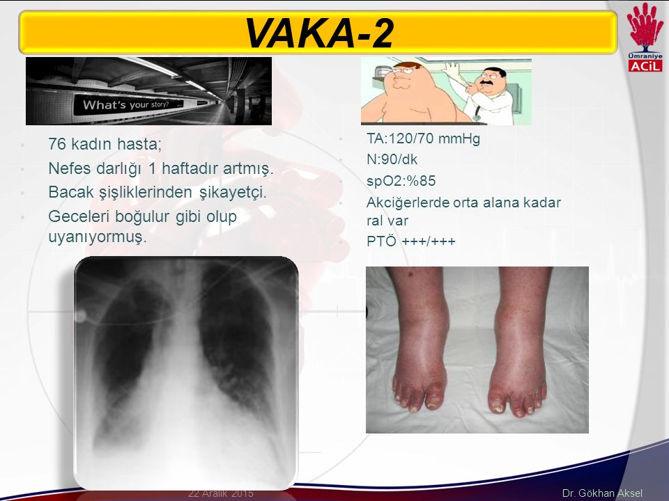 Dr.Gökhan Aksel22 Aralık 2015 70 kadın hasta; Son 10 gündür nefes darlığı varmış.