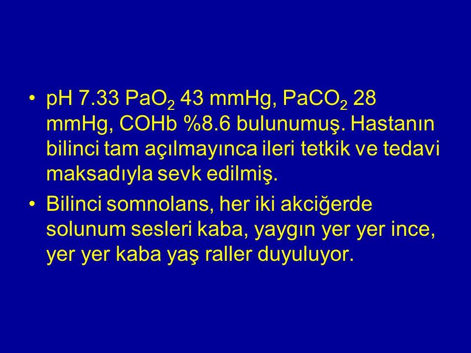 pH 7.33 PaO 2 43 mmHg, PaCO 2 28 mmHg, COHb %8.6 bulunumuş. Hastanın bilinci tam açılmayınca ileri tetkik ve tedavi maksadıyla sevk edilmiş. Bilinci s